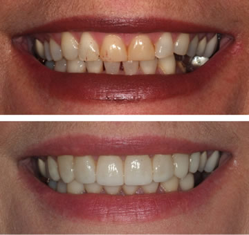 Image Showing Before and After Veneers