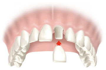 Crowns and Bridges - Northern Ireland Dental Treatments
