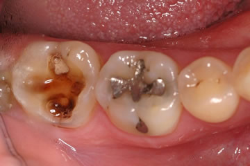 Image Showing Dental Decay