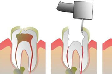 Root Canal Treatment in Northern Ireland