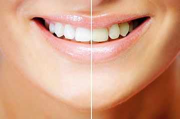 Teeth Whitening Northern Ireland