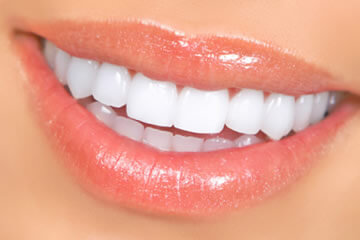 Fix Your Smile With Veneers